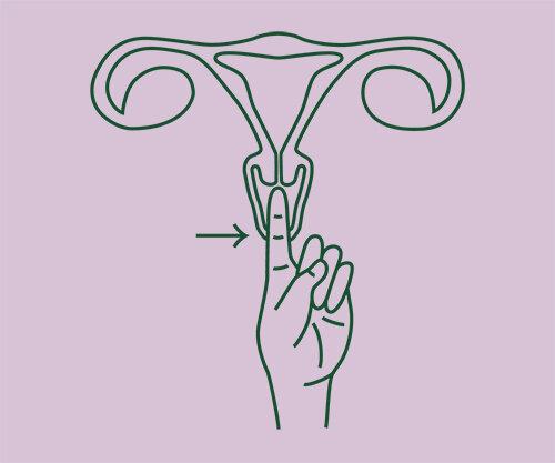 "Average Cervix : 45mm (1.8"") - 55 mm (2.25"")"