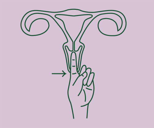 "High Cervix: 55mm (2.25"") or higher"